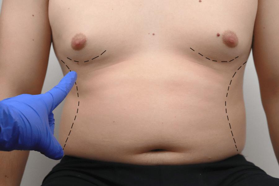 abdominoplastia en hombre