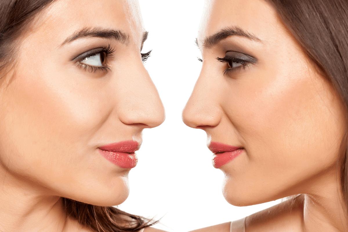 la rinoplastia, entre los tratamientos de cirugía estética facial más demandados