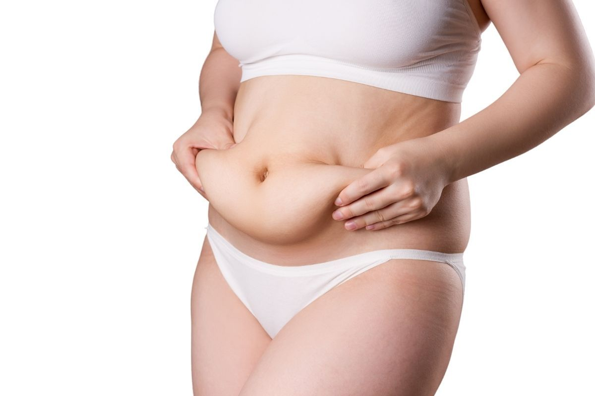 la abdominoplastia elimina la grasa del vientre