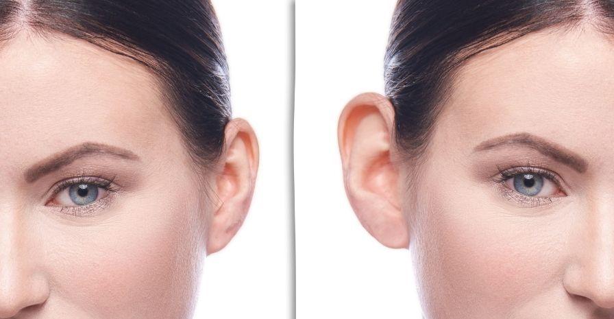 cirugía de las orejas, tratamientos para combatir los efectos de la menopausia y la andropausia